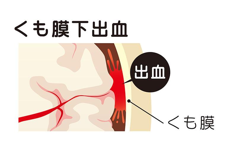 くも膜 下 出血